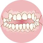 前歯の上と下が咬み合っていない