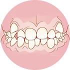 がたがたの歯並び